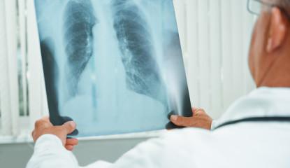 Top 10 de los nuevos casos de cancer en el mundo image 380 415x240 - Top 10 de los  casos de cáncer en el mundo