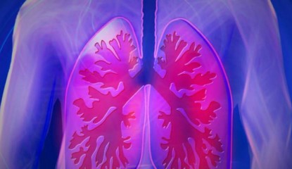 fisioterapia epoc 800x400 415x240 - Más de 80% de casos de EPOC nunca se diagnostican