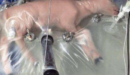 utero Noticias 415x240 - Útero artificial para reducir la mortalidad en bebés muy prematuros